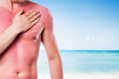 Man with a sunburn stock images