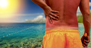 Man with sunburned skin Stock Photo