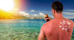Man with sunburned skin Stock Photography