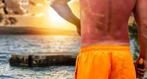 Man with sunburned skin Royalty Free Stock Photography