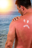 Man with sunburned skin Royalty Free Stock Photos