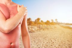 Man with sunburned skin from the sun on the beach stock image