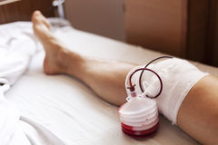 Man after surgery on a leg while lying on a hospital bed Stock Photos