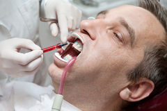 Man during teeth whitening process Stock Images