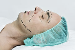 Man about to have a plastic surgery Stock Photography