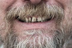 Man with tobacco stained teeth Royalty Free Stock Photography