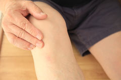 Man touches his aching knee Royalty Free Stock Photography