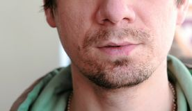 Herpes. Lip treatment. Close-up of the man`s lips with herpes. Front view. Man touching sores on the lips. Herpes. Lip treatment. Close-up of the man`s lips stock photo