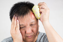 Man treating his injured painful swollen forehead bump with icepack. Closeup on man treating his injured painful swollen forehead bump from accidental fall with stock image