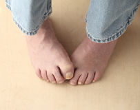 Man tries to hide his toenail fungus Stock Photos
