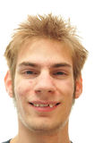 Man trying to smile with crooked teeth Royalty Free Stock Image