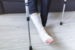 The man is trying to walk with a broken leg. At home royalty free stock image
