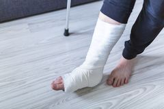 Walking on crutches with a leg in a cast. The man is trying to walk with a broken leg at home royalty free stock photos