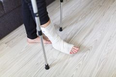 The man is trying to walk with a broken leg. At home royalty free stock photo