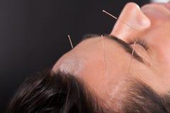 Man undergoing acupuncture treatment Stock Image
