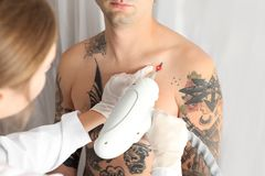 Man undergoing laser tattoo removal procedure. In salon royalty free stock images
