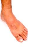 Man voet stock afbeeldingen