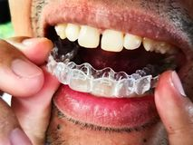 Man is wearing invisalign braces, orthodontic silicone trainer stock photo