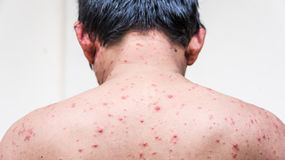 A man who having varicella blister or chickenpox. Back side of a man who having varicella blister or chickenpox ,isolated on white royalty free stock images