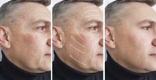 Man wrinkles on the face before and after dermatology removal procedures, arrow. Man wrinkles on the face before and after procedures, arrow removal dermatology stock photography