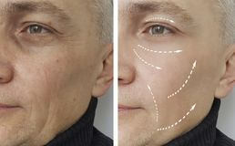 Man wrinkles before and after therapy surgery removal aging procedures dermatology medicine. Man wrinkles before after procedures medicine dermatology removal stock image
