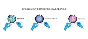 Mancha Urological, micróbios patogênicos ilustração do vetor