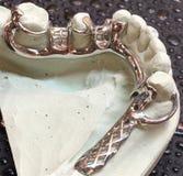Mandibular partial denture Stock Images