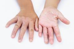 Mani asciutte, buccia, dermatite da contatto, micosi, pelle inf fotografie stock libere da diritti