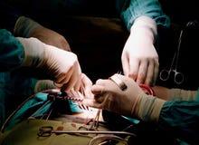 Mani dei chirurghi Fotografia Stock