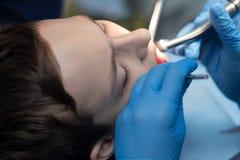 Mani del dentista in guanti blu con il primo piano degli strumenti Un adolescente ad un appuntamento del ` s di medico sta tratta fotografia stock