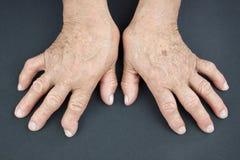 Mani di artrite reumatoide Immagine Stock