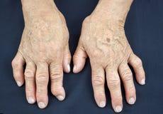 Mani di artrite reumatoide Fotografie Stock