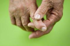 Mani di artrite reumatoide Fotografie Stock Libere da Diritti