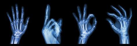 Mani di simbolo dei raggi x della raccolta Immagine Stock Libera da Diritti