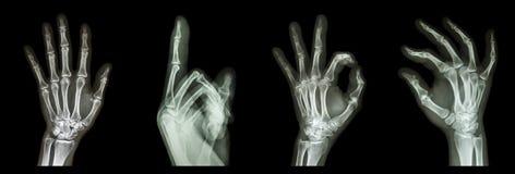 Mani di simbolo dei raggi x della raccolta Immagini Stock Libere da Diritti