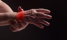 Mani senior. Soffrendo dal dolore e dal reumatismo Immagini Stock Libere da Diritti