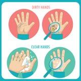 Mani sporche Chiare mani Prima e dopo Icone piane di vettore di igiene della mano nel cerchio Immagini Stock
