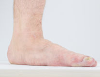 Manifestation of flat feet and fungal diseases. Stock Photos