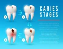 Manifesto di carie dentaria 3d di sviluppo della carie dentale royalty illustrazione gratis