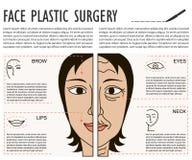 Manifesto facciale di plastica cosmetico della chirurgia Fotografia Stock Libera da Diritti