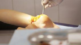 Manipulera att förbereda kvinnlig patiet för förbinder henne foten för ` s på det medicinska kontoret arkivfilmer