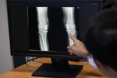 Manipulera att peka på knäproblempunkten på röntgenstrålefilmen knä för show för röntgenstrålefilm skelett- på filmen Arkivfoto