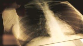 Manipulera förklaring av röntgenstrålebild av en bröstkorg till en patient skott för närbild 4K stock video