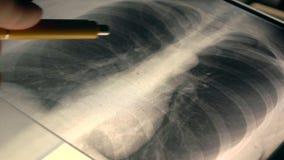 Manipulera förklaring av röntgenstrålebild av en bröstkorg till en patient video för närbild 4K stock video