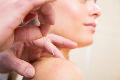 Manipulera räcker akupunkturvisaren som sticker på kvinna Royaltyfri Bild