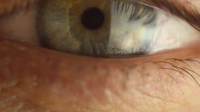 Manlig ?gonn?rbild f?r blinka som omkring ser R?d art?r p? ?gonglobmakroen Elevreaktion som ska t?ndas Mioz och Midriaz stock video