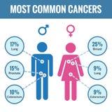 Manlig och kvinnlig cancerinfographics vektor illustrationer