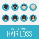 Manlig och kvinnlig uppsättning för hårförlust royaltyfri illustrationer