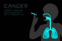 Manlig organröntgenstråleuppsättning; Illustration för Lung Cancer begreppsidé stock illustrationer