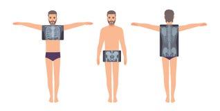 Manlig patient och hans bröstkorg, bäcken och tillbaka röntgenbild som isoleras på vit bakgrund Skäggig man och röntgenstrålebild stock illustrationer